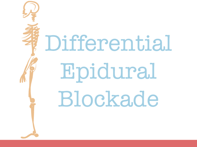 Differential Epidural Block